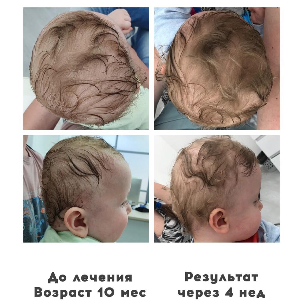 Прием ортопедов деформация головы у детей 15 - Ортотис Премиум