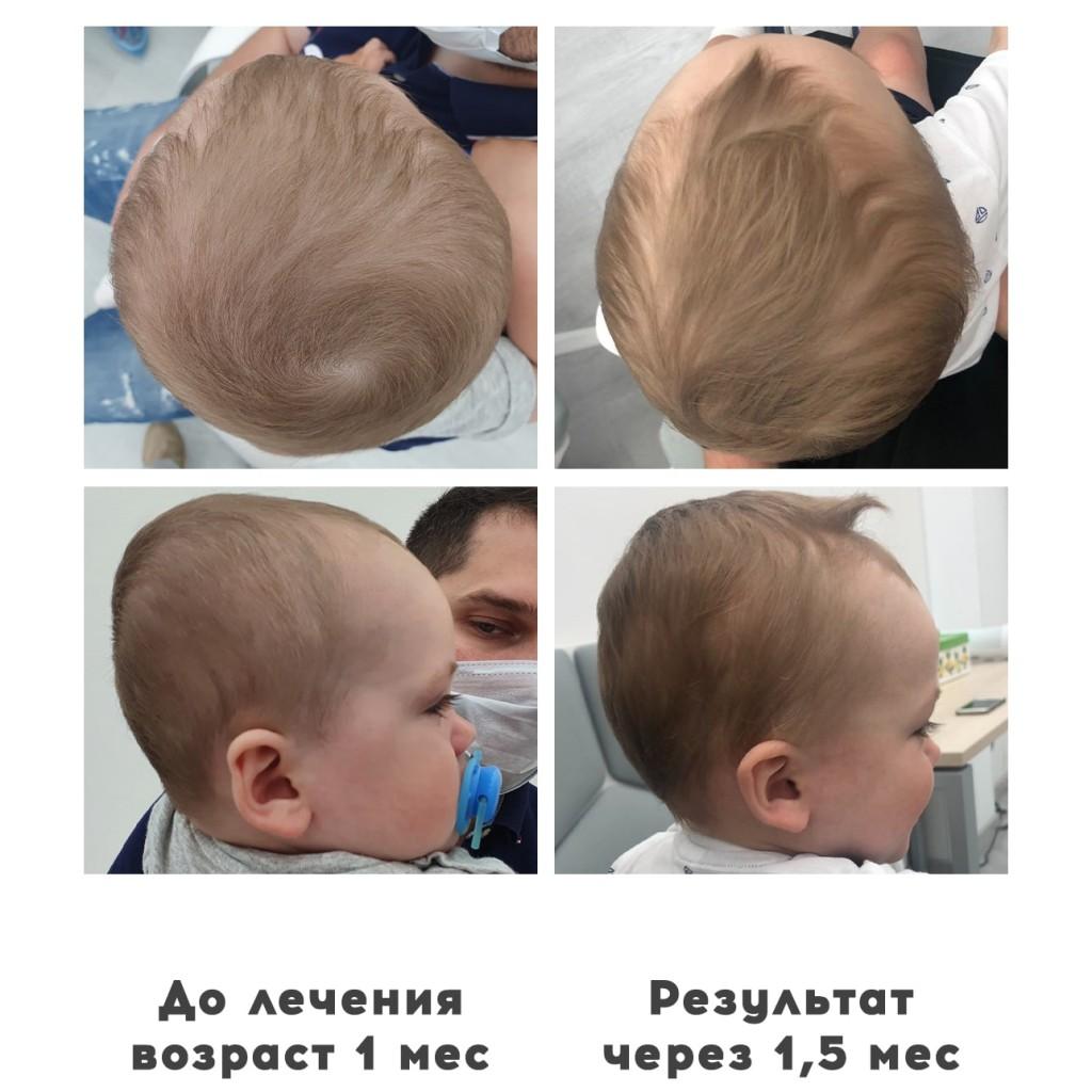 Прием ортопедов деформация головы у детей 5 - Ортотис Премиум