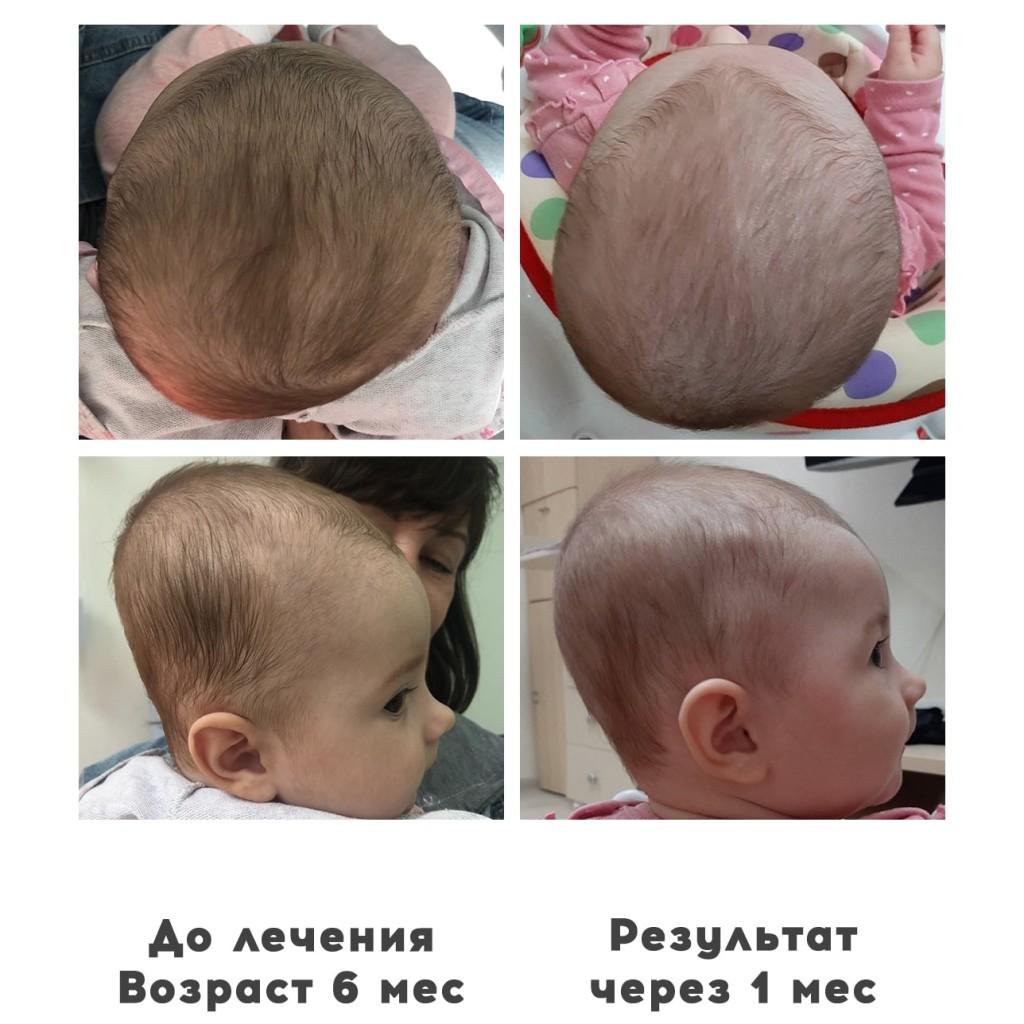 Прием ортопедов деформация головы у детей 12 - Ортотис Премиум