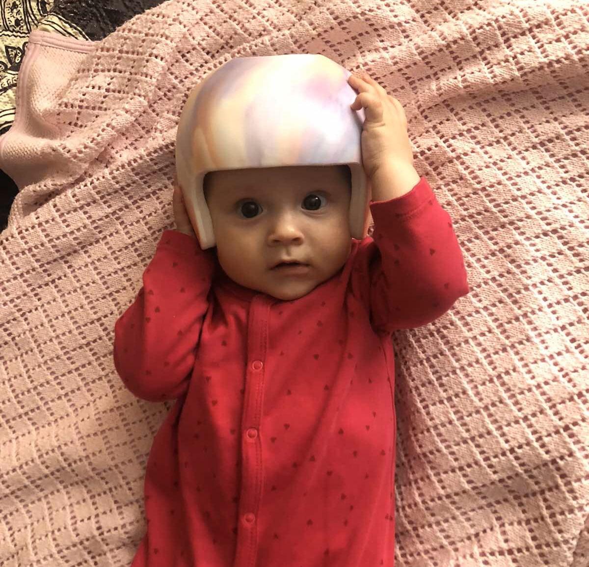 Причины деформации головы у детей - Ортотис Премиум