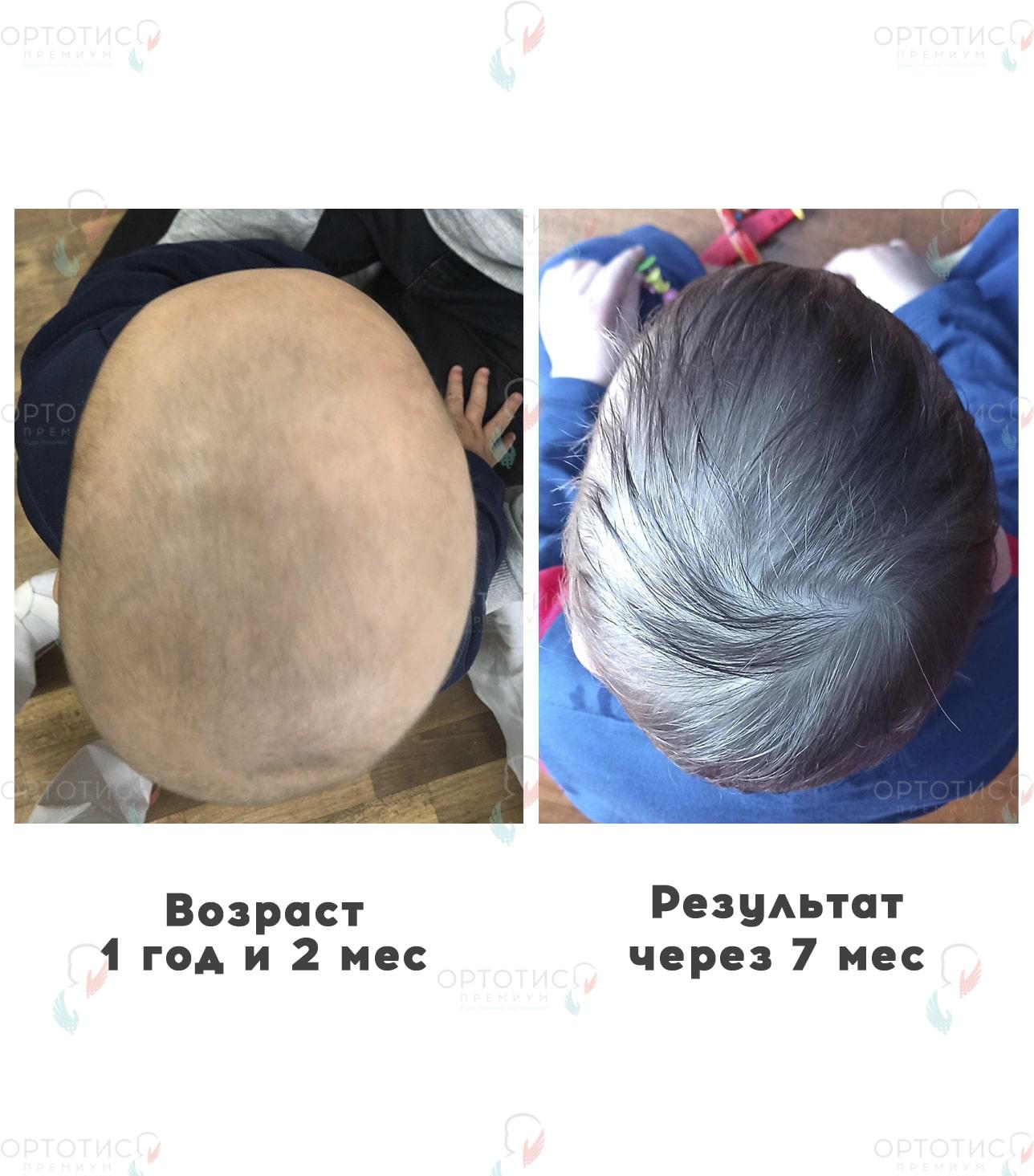 Плагиоцефалия, 7 месяцев - Ортотис Премиум