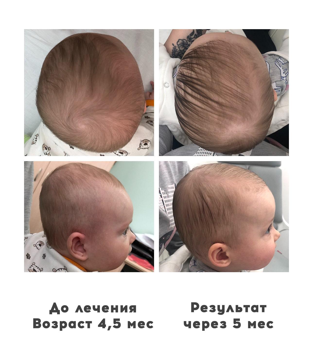 Плагиоцефалия, 5 месяцев - Ортотис Премиум