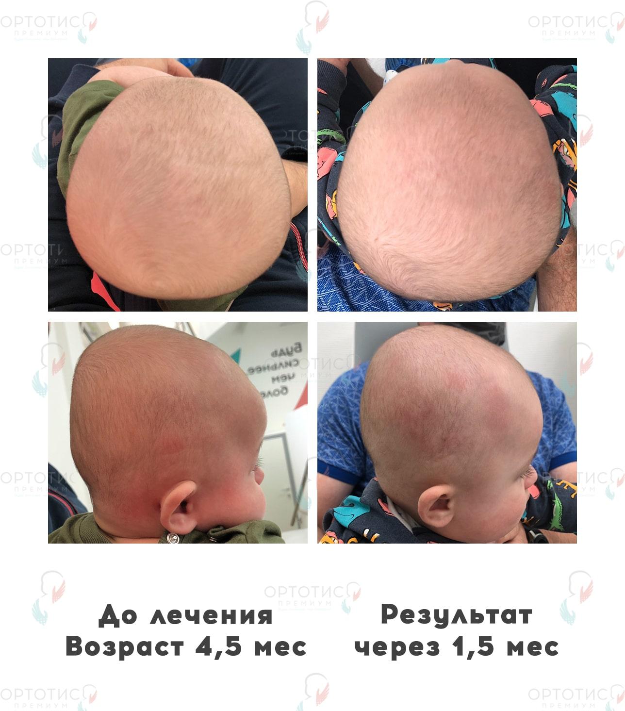 Брахицефалия, 4 месяцев - Ортотис Премиум