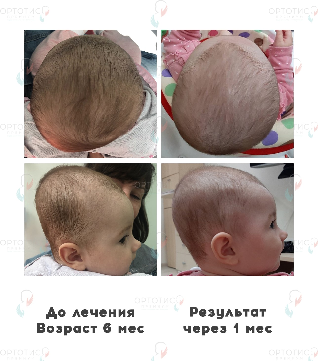 Плагиоцефалия, 4 месяцев - Ортотис Премиум