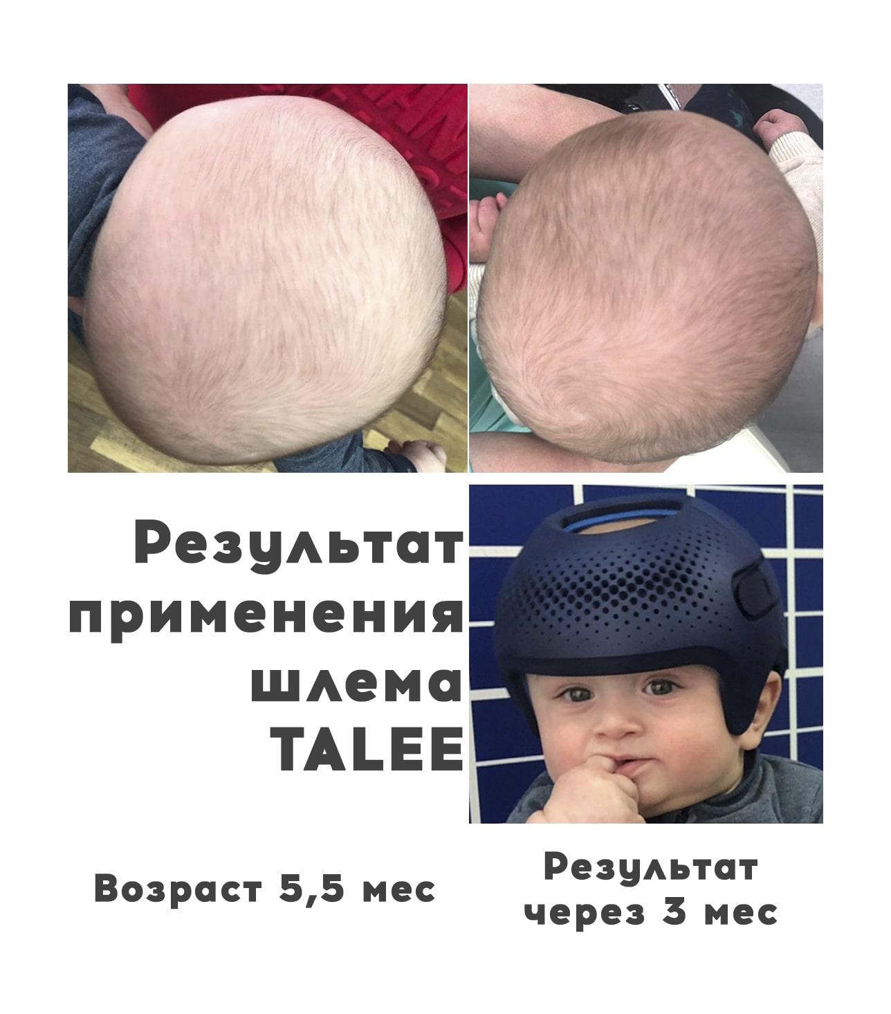 Асимметричная брахицефалия, 4 месяцев - Ортотис Премиум