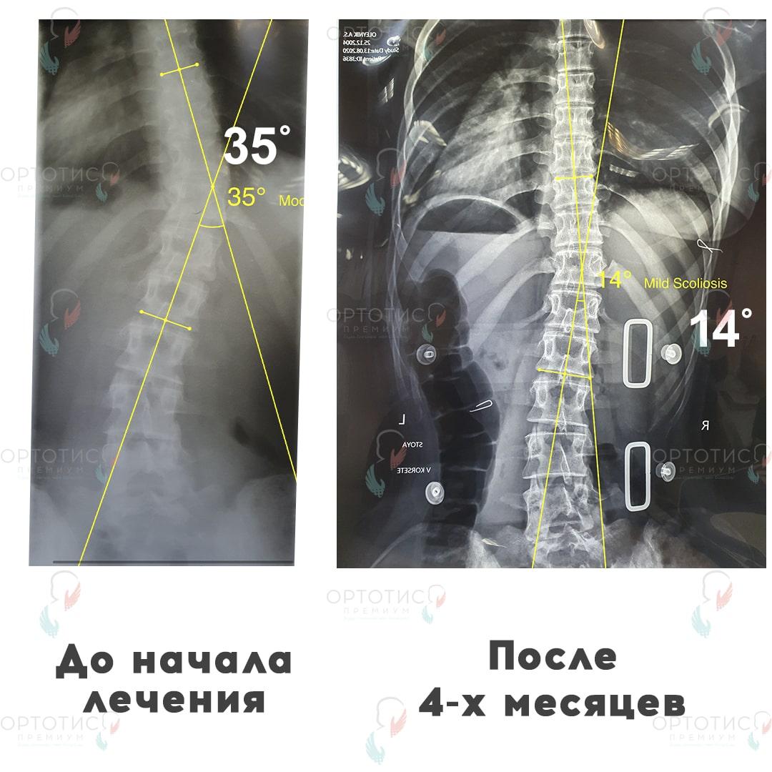 Сколиоз, 4 месяца - Ортотис Премиум