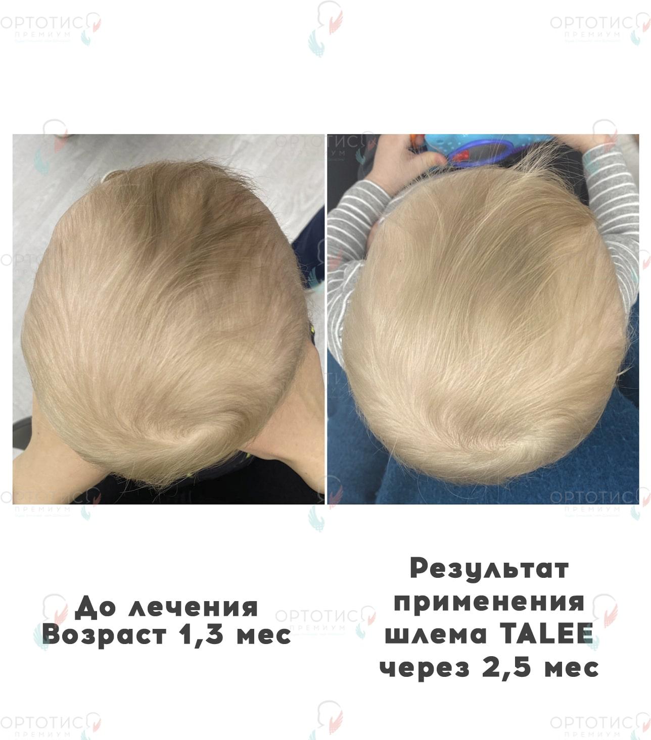 Плагиоцефалия, 2,5 месяцев - Ортотис Премиум