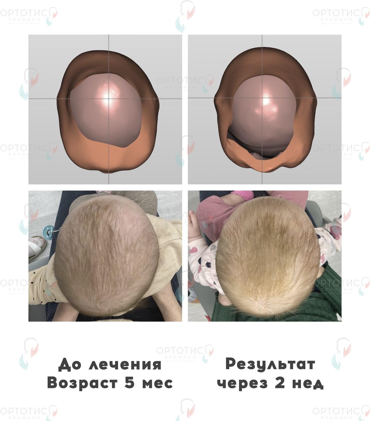 Плагиоцефалия, 2 недели - Ортотис Премиум