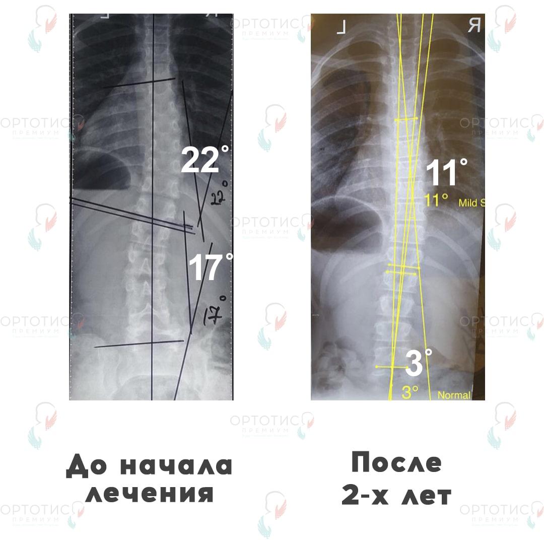Сколиоз, 2 года - Ортотис Премиум