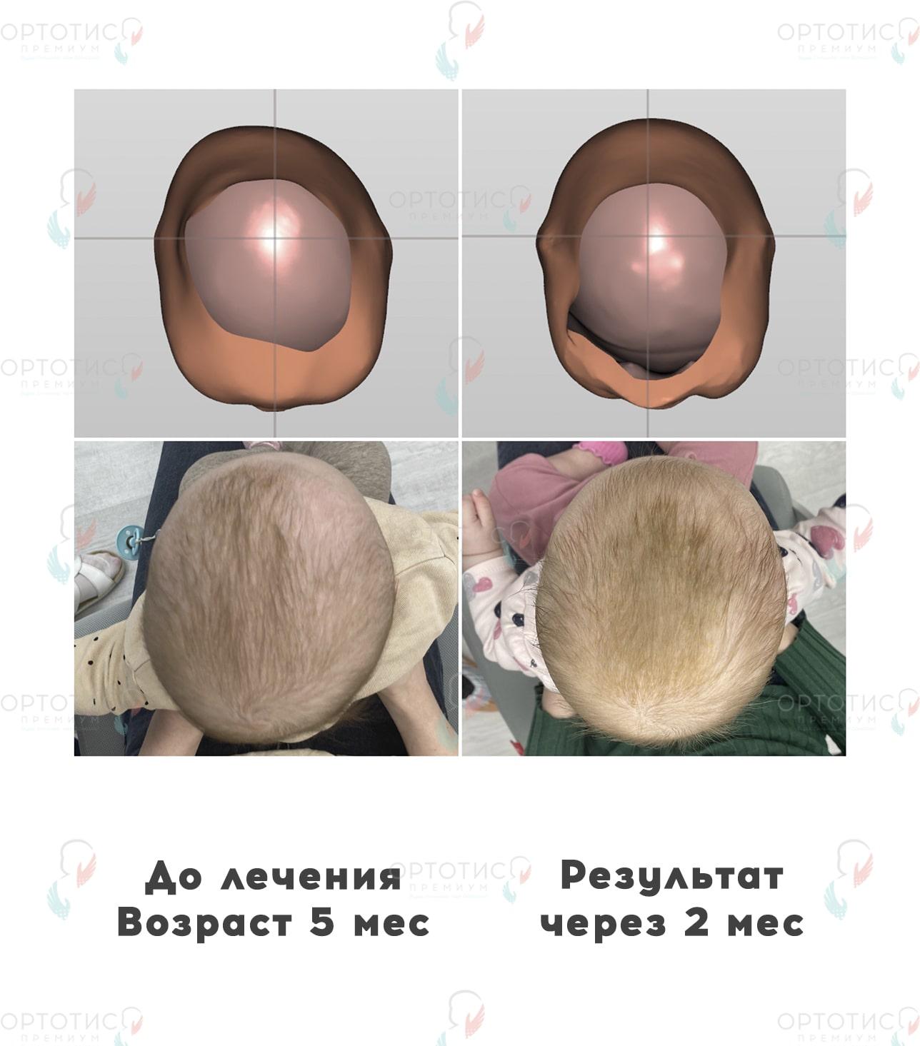 Плагиоцефалия, 2 месяца - Ортотис Премиум