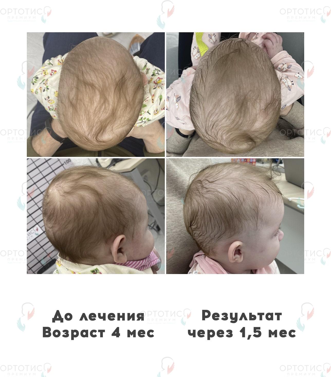 Плагиоцефалия, 1,5 месяца - Ортотис Премиум