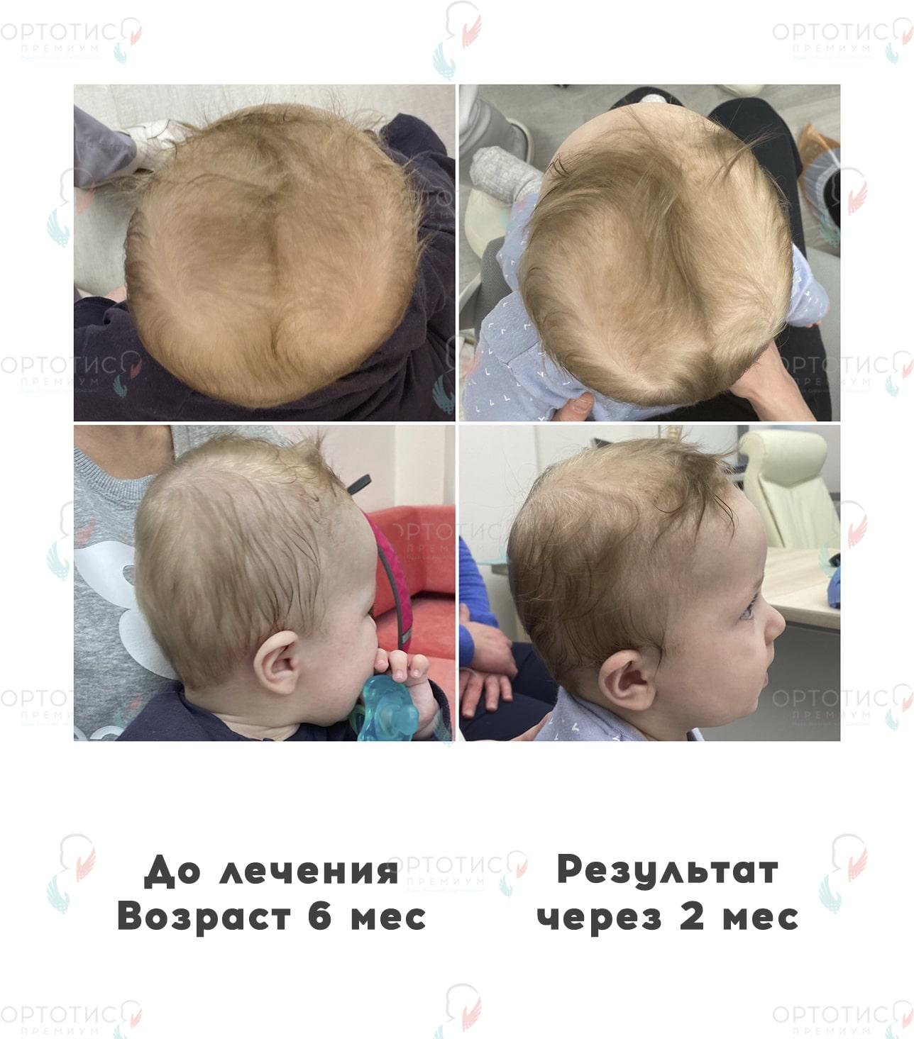 Асимметричная брахицефалия, 2 месяца - Ортотис Премиум