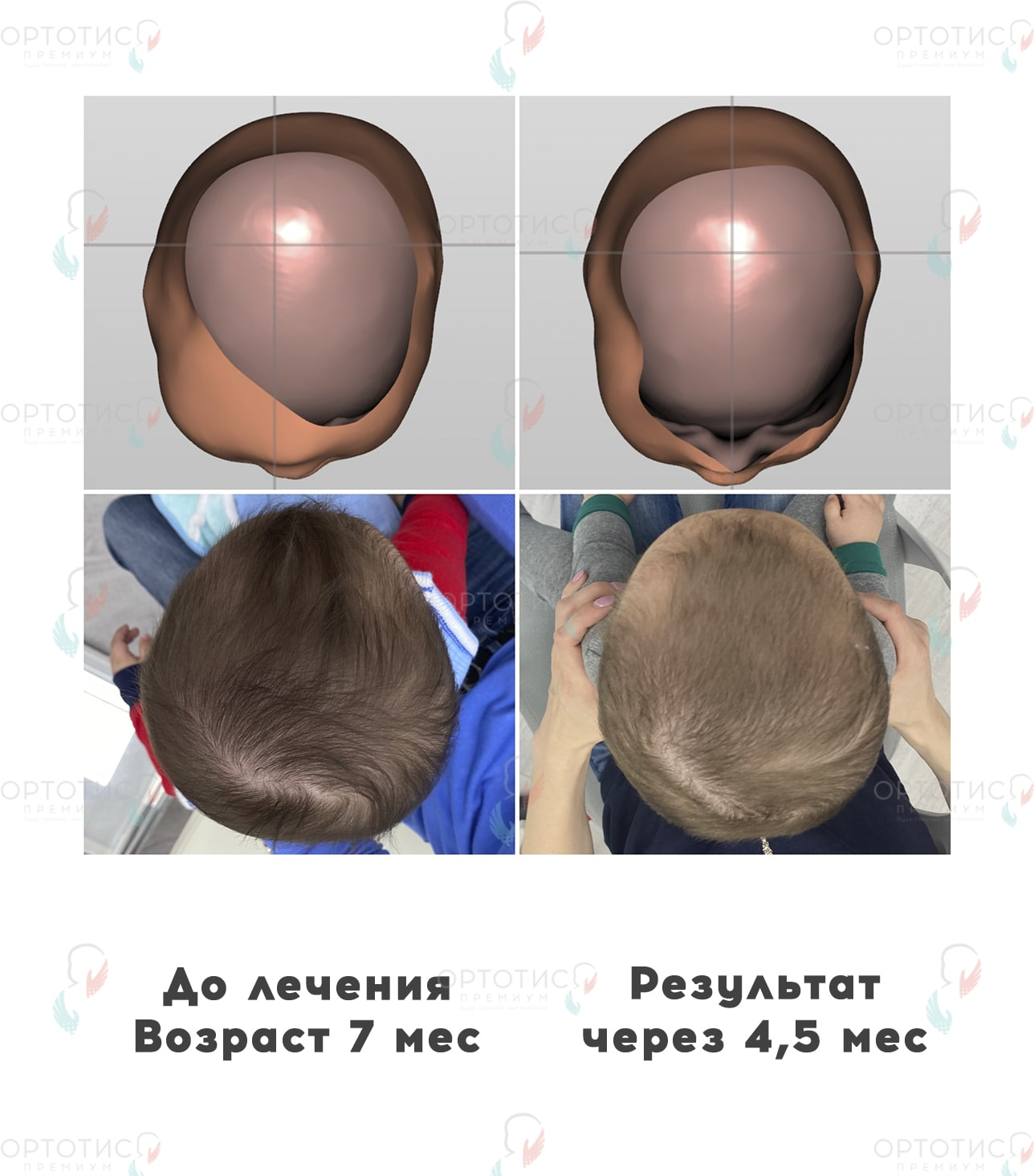 Асимметричная брахицефалия, 4,5 месяцев - Ортотис Премиум