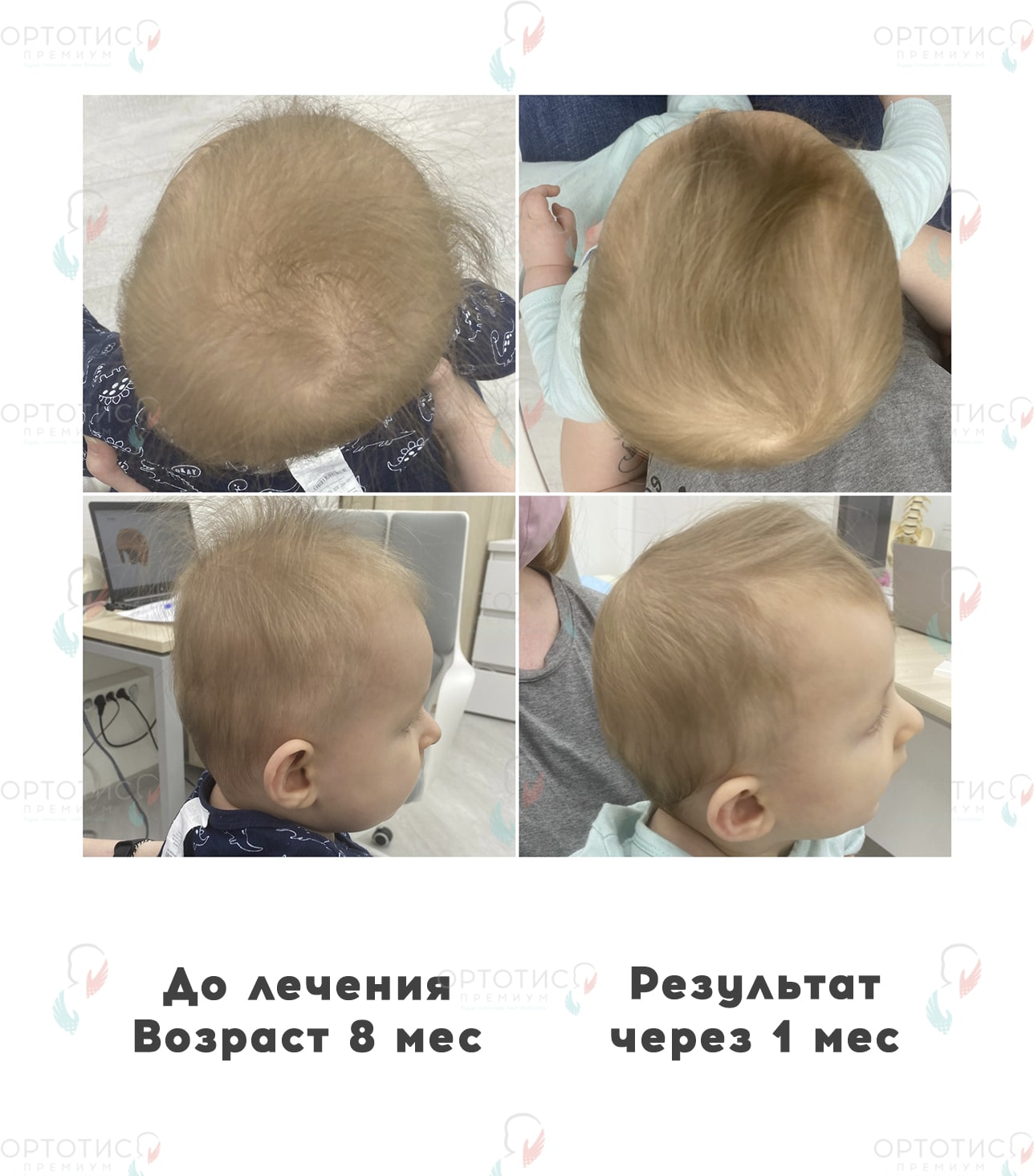 Брахицефалия, 1 месяц - Ортотис Премиум