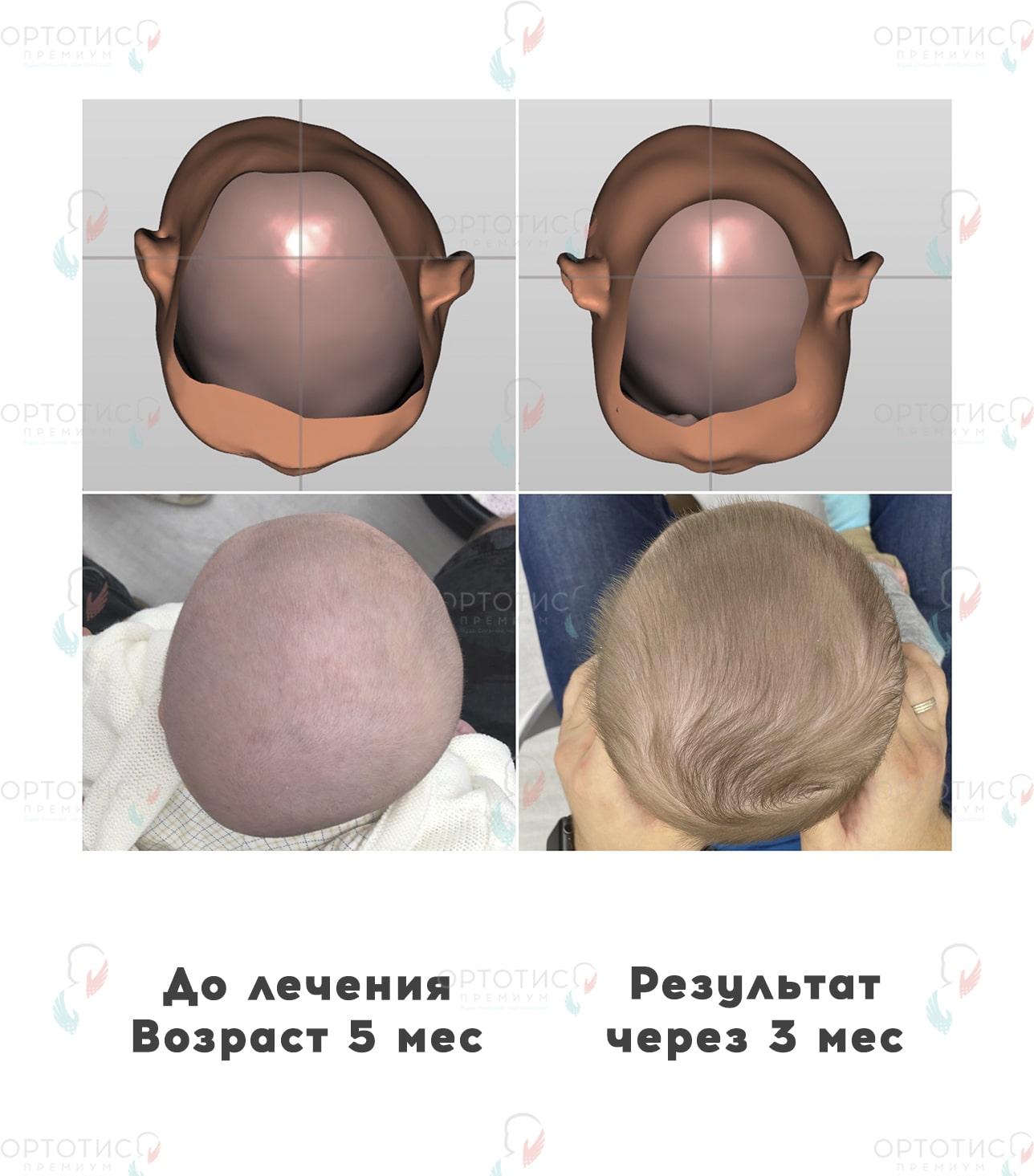 Плагиоцефалия, 3 месяца - Ортотис Премиум