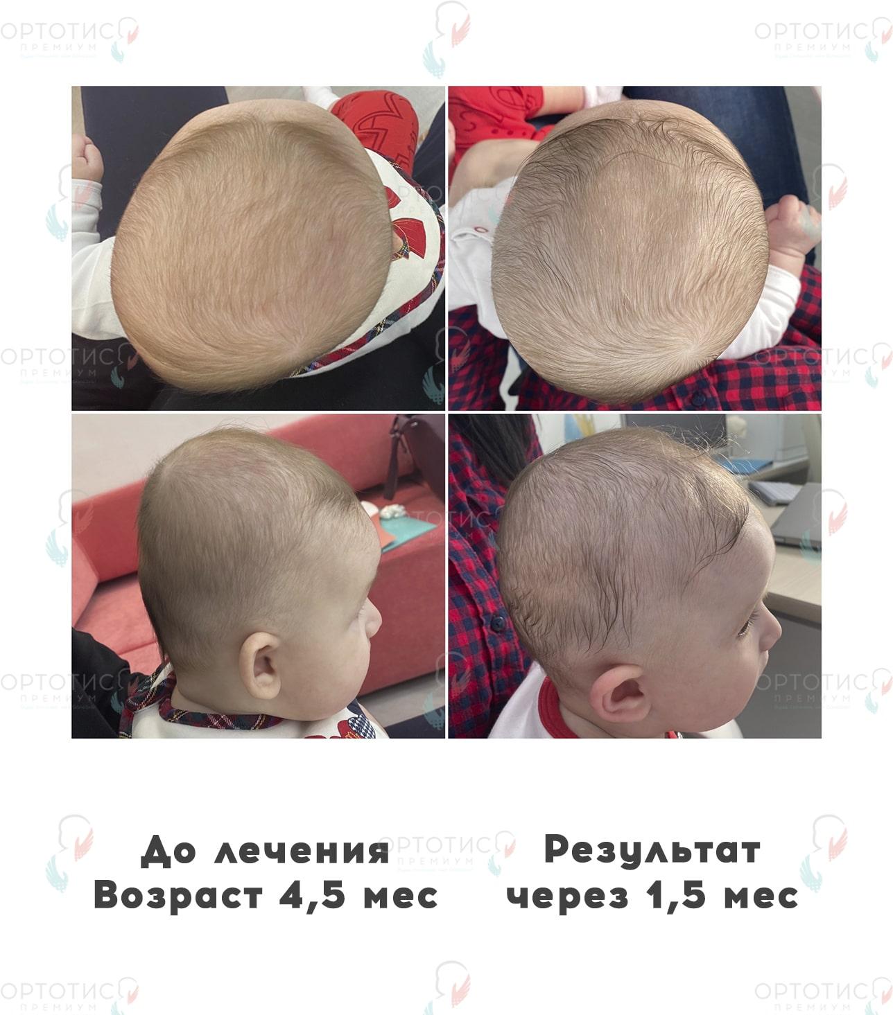 Асимметричная брахицефалия, 1,5 месяца - Ортотис Премиум