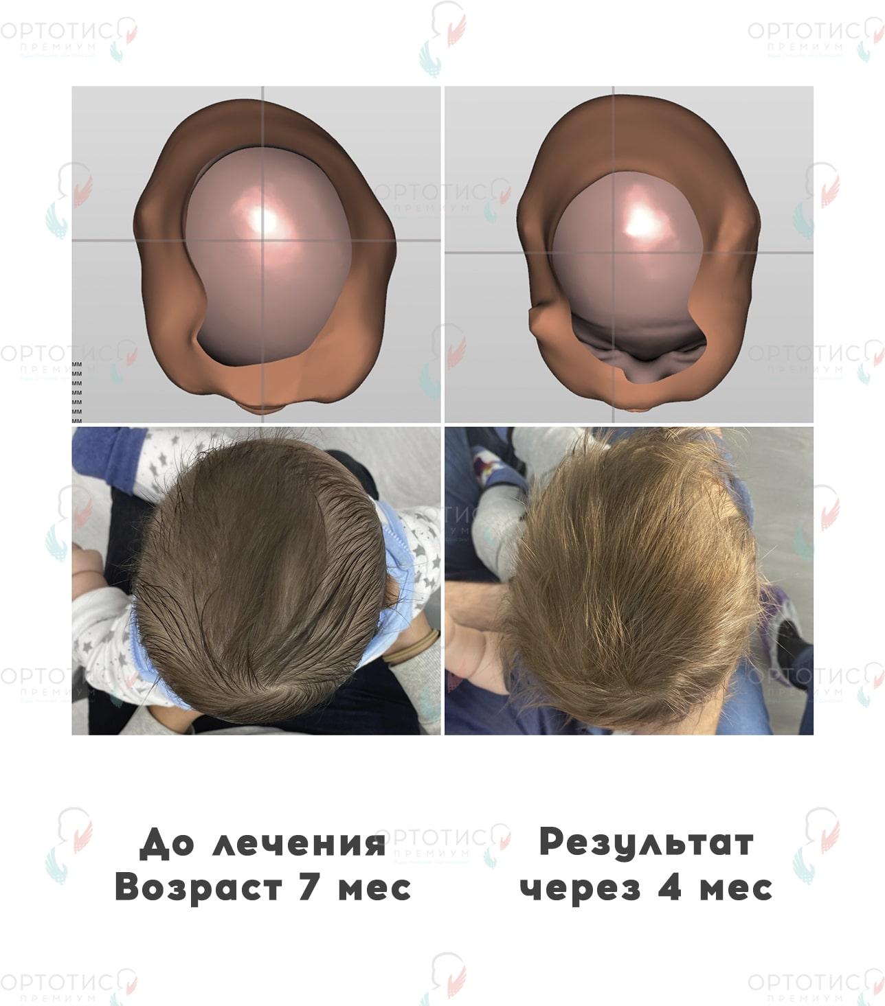 Асимметричная брахицефалия, 4 месяца - Ортотис Премиум