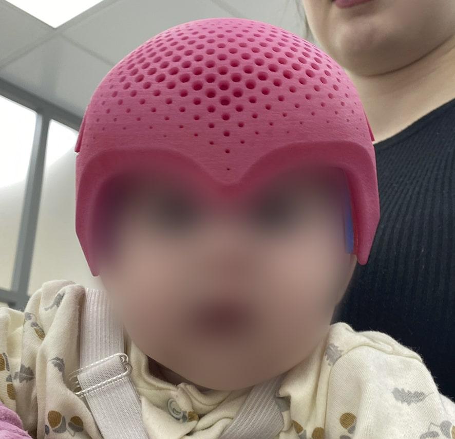 Применение шлема после операции по поводу тригоноцефалии. - Ортотис Премиум